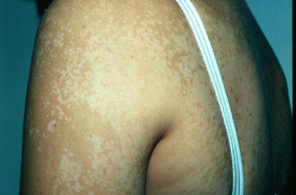 Peau blanche : Forum Soins du visage  Teemix