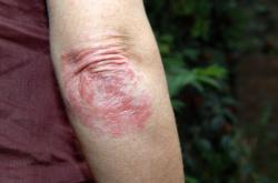 Les sangsues au psoriasis le forum